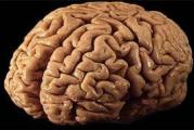 Quel hémisphère de ton cerveau : logique ou intuitif ?